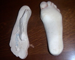 Plaster casts of feet