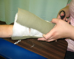 How can I reuse or recycle old orthopedic casts?